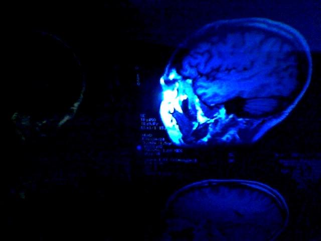 TV Brain 22